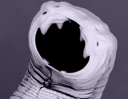 Can bloodsucking parasitic hookworms be the secret weapon